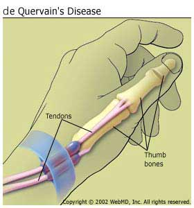 de_Quervains_arthritis_de_quervains_disease_information